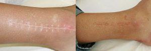 Disfarce de Cicatriz ou Mnchas