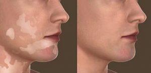 Vitiligo recuperação