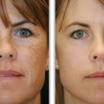 Micropigmentação ajuda a disfarçar manchas de pele