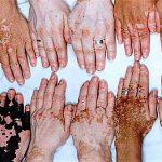 Micropigmentação, Camuflagem de Vitiligo