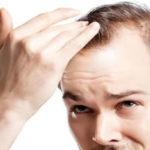 Tratamento para queda de cabelo – Biomédico Invasivo não Cirúrgico