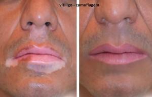 foto-vitiligo