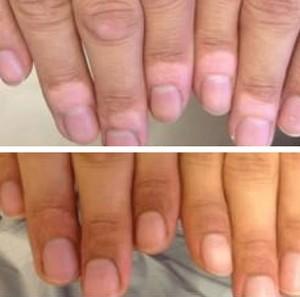 foto-vitiligo2