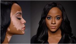 foto-vitiligo3